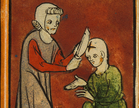 Medieval Surgeons. Surgery in the 14th century