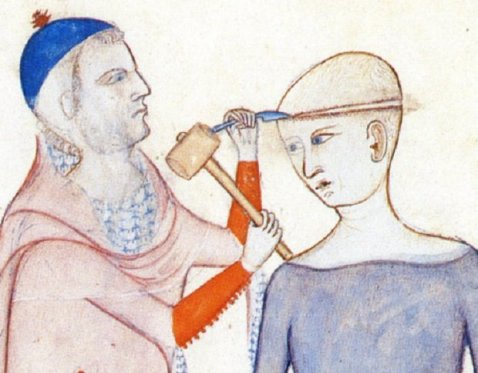 Unknown artist, Surgeon Conducting a Trephination in Guy of Pavia's Anatomia, c. 1345.
