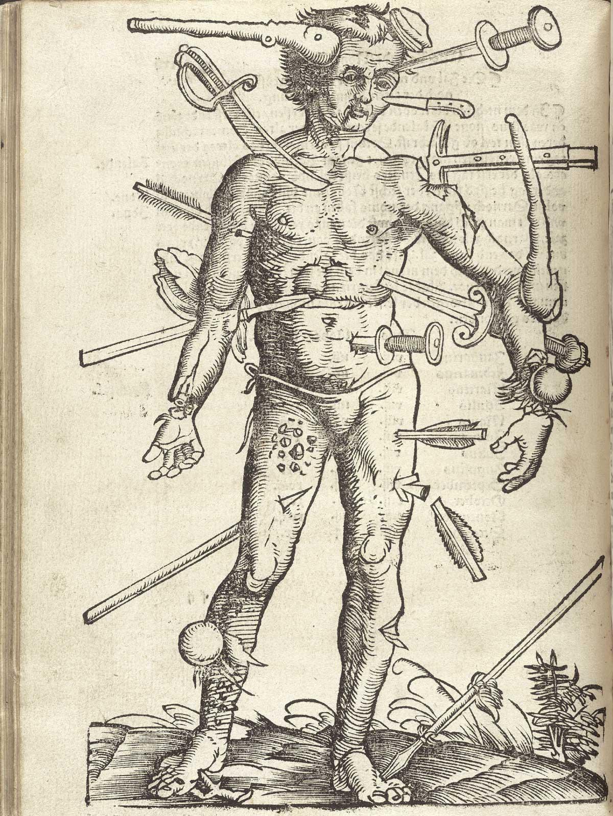 hans-von-gesdorff-field-book-of-surgery-the-wounded-man-strasburg-1528