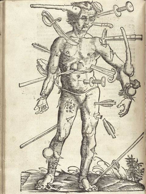 hans-von-gesdorff-field-book-of-surgery-the-wounded-man-strasburg-1528
