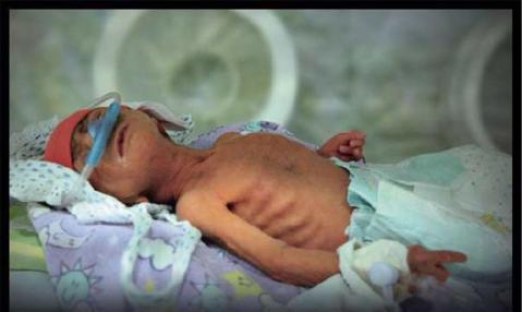 Fumar pode matar o seu filho antes de ele nascer