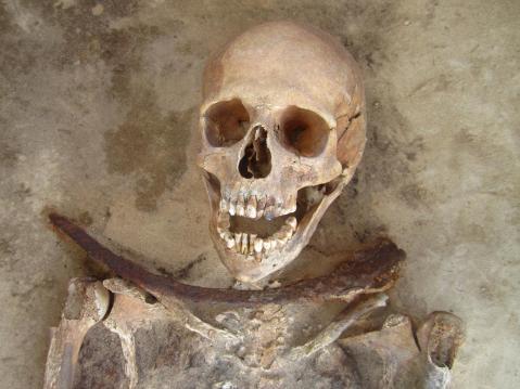 09. Esqueleto de mulher enterrada com foice na garganta. Polónia, secs XVII e XVIII.