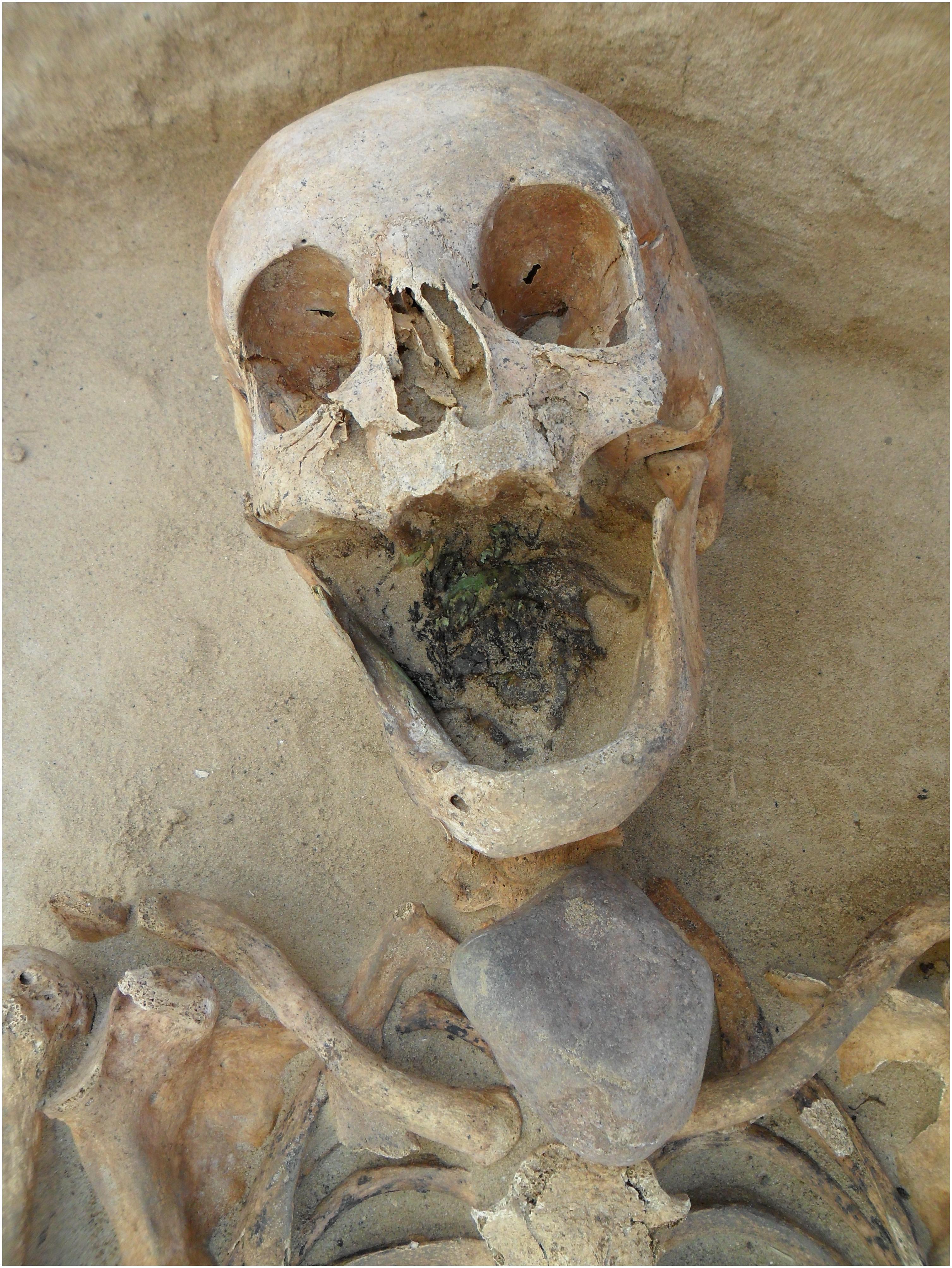 11. Mulher vampiro com pedra colocada na garganta. Drawsko. Polónia. Séc XVII e XVIII