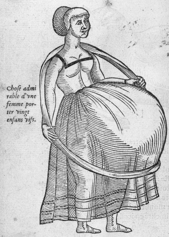 05.Ambroise Paré. Oeuvres. Paris. G. Buon. 1575