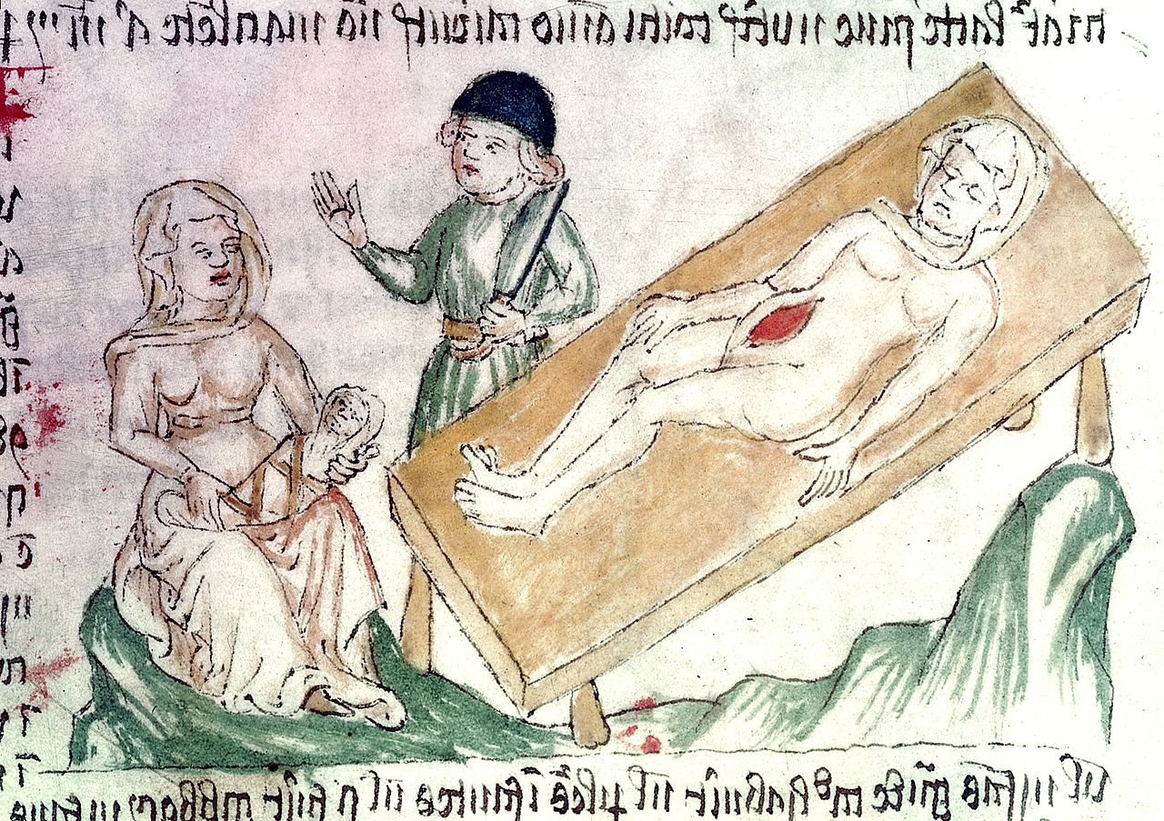 14. Incisão cesariana. Welcome Apocalypse, c. 1420