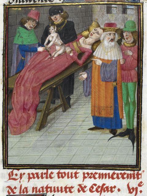 15. O nascimento de Júlio César. Bellum Gallicum, 1473-1476. Cirugiões em vez de parteiras. A mãe aparenta estar viva. Embora retrate a realidade medieval, refere-se à Antiguidade.